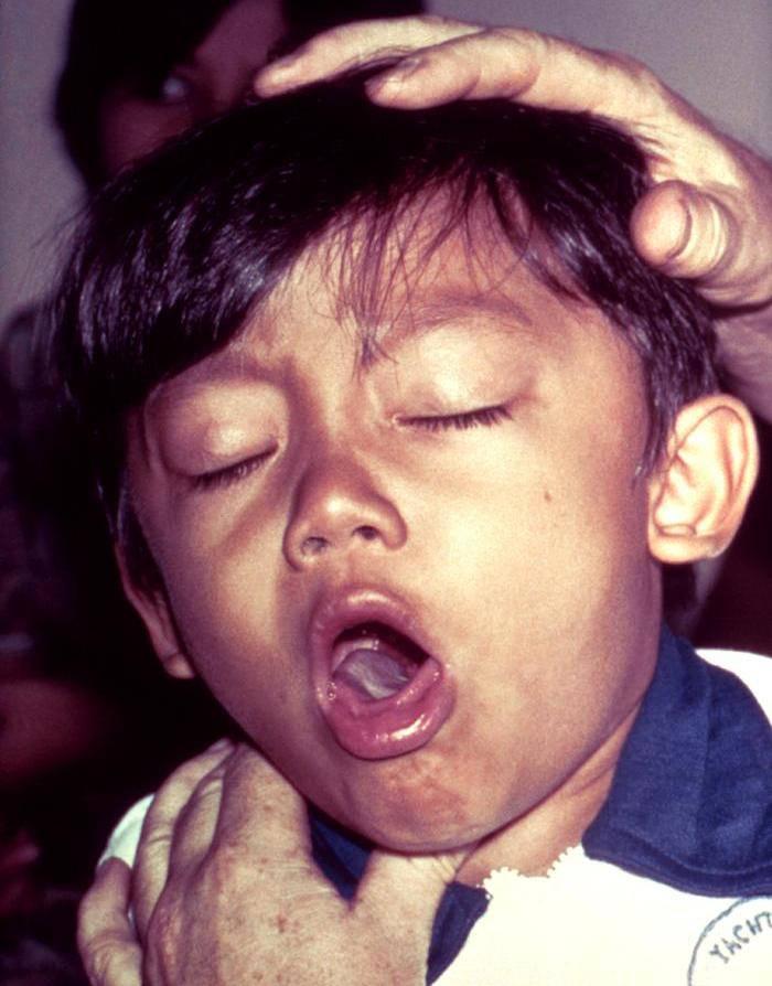 dítě s černým kašlem