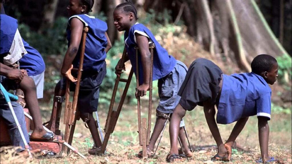 následky dětské obrny