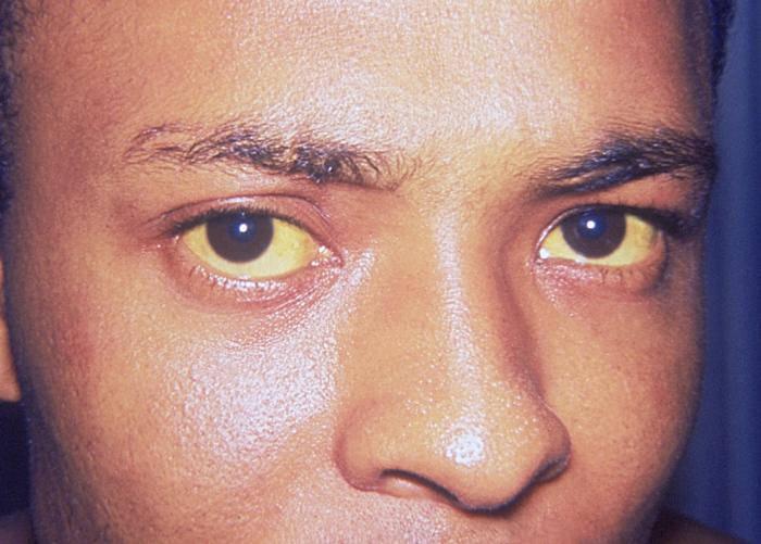 zežloutlé oči - žloutenka A